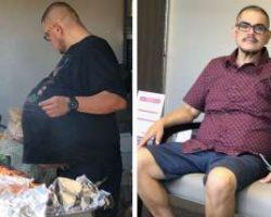 """Homem descobre que """"barriga de cerveja"""" era tumor de 34 quilos"""